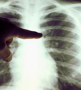 Detox Lungs क्या है